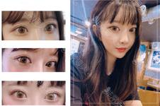 在韓國做雙眼皮手術多少錢,一篇教你算出真實價格的文章