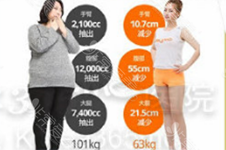 胖人脂肪层的硬块是什么?体重超过200斤还适合抽脂吗?