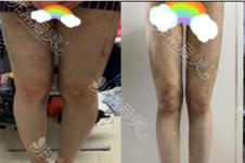 大小腿吸脂通常吸多少?不会腿特别疼特别肿不影响走路吗?