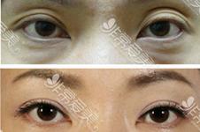 韩国bio医院曹仁昌、辛容镐做眼睛谁更好?眼睛修复该选谁?
