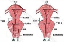 韓國縮陰手術哪家好?韓國好手藝婦科醫院縮陰手術效果如何?