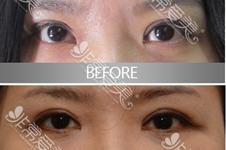 韓國內眼角修復誰做的好?解析EVE,GIO,Soonplus,Swan眼角修復特色