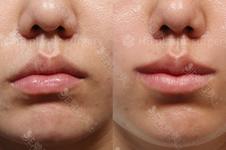 千萬不要做縮唇手術?傳言厚唇改薄唇一年后反彈是真的嗎?