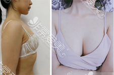 韩国隆胸医院排名:普罗菲耳、Glam、棒棒、PJS、麦恩、MD上榜!