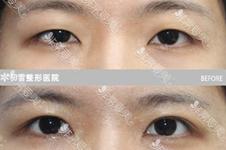韩国初雪chutnoon整形医院双眼皮修复案例分享