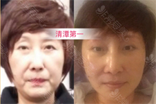 韓國除皺提升有幾種方式?拉皮,線提升,縱深肌理歸位術誰強?