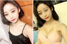 韓國隆胸好醫生做手術需要多少錢?樸原辰還做胸嗎?