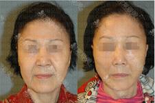 韓國拉皮手術醫院排名:小切口到全面部拉皮這幾家堪稱代表!