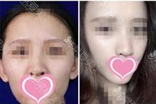 韓國世民整形顴骨手術價格分析,影響價格因素主要有四!