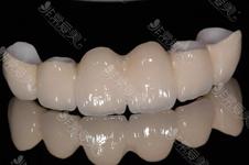 氧化锆全瓷牙好处有哪些?不含金属不怕CT硬度足够高!