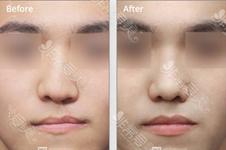 唇裂鼻畸形鼻孔可以矫正吗?韩国哪些整形医院能修复鼻孔?