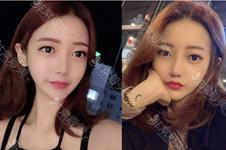 去韩国艾恩整形做眼睛贵吗?他们家华丽风双眼皮需要多少钱?