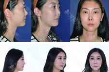 鼻子第三次修复困难不?难点是可用健康组织少以及炎症!