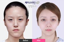 韩国双鄂手术价格多少?菲斯莱茵双鄂手术优势、效果解析!