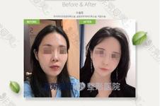 韩国面部轮廓医院排名大全—颧骨下颌角轮廓擅长机构分析!