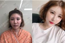 韩国生物肋骨鼻是怎么回事?噱头or真相!科普它和肋骨鼻区别!