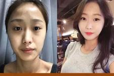 韩国id整形中途换医生真的吗?我在id整形真实经历揭秘真相!