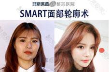 韩国排名前10整形医生都有谁?韩国出名的整形医院医生推荐!