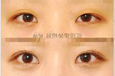 韩国世现sehyun整形在韩国名声好吗?医院手术风格什么样?