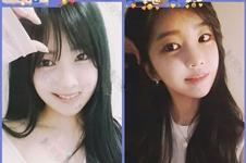 韩国艺人颧骨高都怎么改善?有没有恢复期很快的缩颧骨方法?