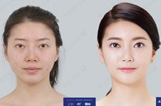 韩国的突嘴手术靠谱吗?韩国能做突嘴手术的医院哪家好?