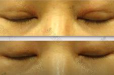 韩国iwant整形双眼皮失败修复少钱?韩国双眼皮修复医院推荐