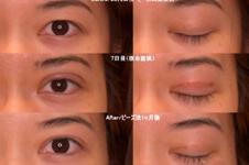 去日本割双眼皮多少钱?日本割双眼皮医院排名榜及价格揭秘!