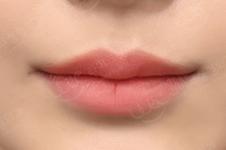 韩国来客整形外科优秀的唇整形院长叫什么名字?什么背景?