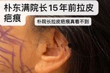韩国下巴拉提整形手术多少钱?伤口在哪里会不会影响形象