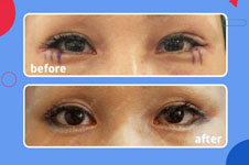 辛容鎬雙眼皮修復的效果怎么樣?有沒有手術案例圖看看效果?
