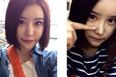 我在韩国topclass做轮廓+双眼皮的真实经历分享!