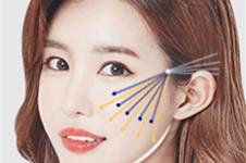 韩国普罗菲耳医院做面部抗衰项目怎么样?提升效果好吗