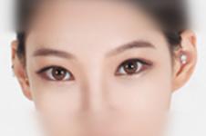韩国BK东洋整形医院外眼角手术靠谱吗,效果怎么样
