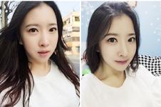 韓國灰姑娘與綺林醫院做眼綜合哪家好,多張效果案例告訴你