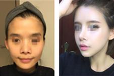 韩国爱我医院蒜头鼻整形多少钱?前后对比照片效果图曝光