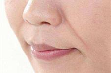 玻尿酸填鼻唇溝失敗?韓國純真醫院:填充鼻唇溝得這么來