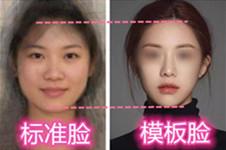 你与韩国整形模板差了点啥?(下):包眼角、双眼皮与花瓣唇