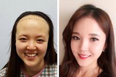 禿頭女孩福音:韓國毛杰琳醫院發際線植發效果了解一下!