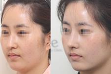 韩国olive整形外科眼鼻脂整形套餐是啥?手术效果明显吗?