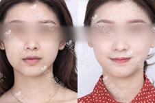 首爾超有名氣的皮膚管理中心推薦(1):韓國LAMICHE整形皮膚