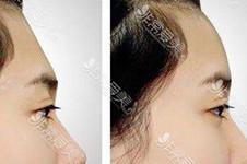 韩国K-art医院额头缩小术靠不靠谱?通过手术对比照片告诉你