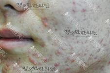 痘痘、痘坑、痘疤統統交給韓國鳴玉軒韓醫院,還你細膩肌膚