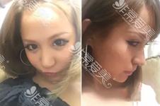 日本酒井倫明做鼻子效果怎么樣?真實案例帶你了解其風格