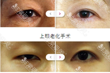 韩国双眼皮修复擅长医院有I WANT吗?她家在韩国怎么样?