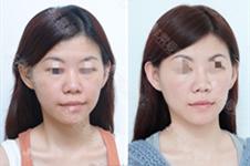 韩国江南kbeauty抗衰项目案例曝光,祛眼袋+颧骨+法令纹提拉