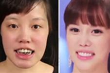 韩国必妩let美人案例有哪些?分别做了什么整形多少钱?