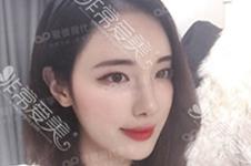 曹栋弼磨骨案例合辑,曾先后在GNG、AP担任轮廓医生!!