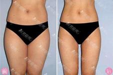 為什么說脂肪不是抽的越多越好?韓國365mc醫院曾道出真相!