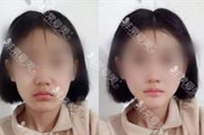 少女感從何而來?人中縮短術了解一下!韓國多家醫院案例分享