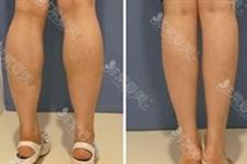 瘦腿针一般能瘦几厘米?100单位瘦腿针能瘦多少?超强图解介绍